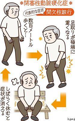 症 動脈 閉塞 性 硬化 動脈硬化が足の血管に起こったら…末梢動脈疾患(閉塞性動脈硬化症)