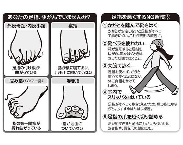 あなたの足指は大丈夫?日本人が起こしやすい足指の変形症状